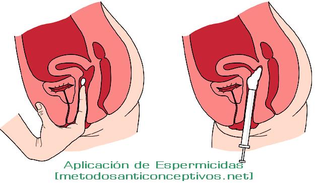 aplicacion-espermicidas